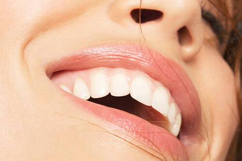 country club dental teeth whitening flagstaff